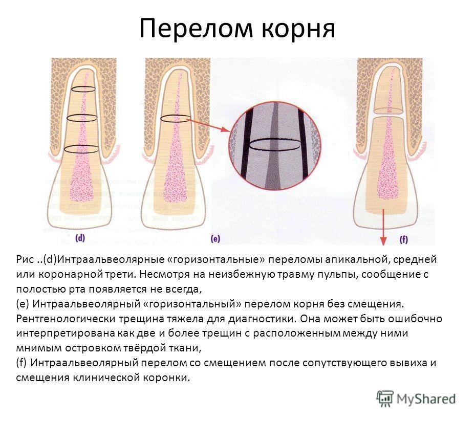 Перелом корня Рис..(d)Интраальвеолярные «горизонтальные» переломы апикальной, средней или коронарной трети. Несмотря на неизбежную травму пульпы, сообщение с полостью рта появляется не всегда, (е) Интраальвеолярный «горизонтальный» перелом корня без