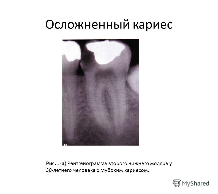 Осложненный кариес Рис.. (а) Рентгенограмма второго нижнего моляра у 30-летнего человека с глубоким кариесом.