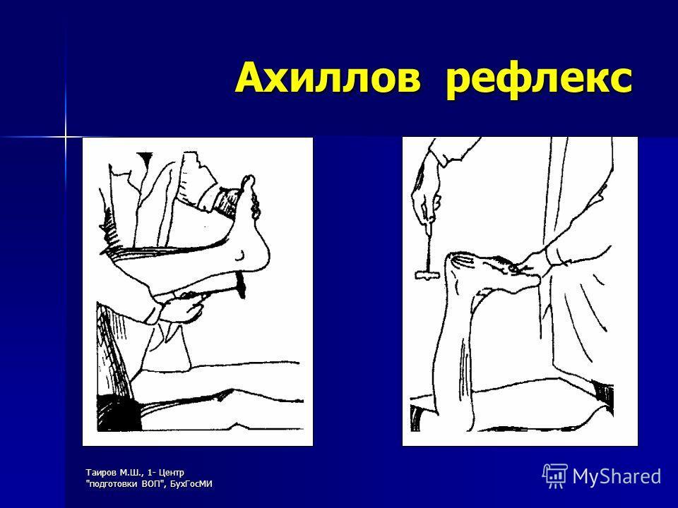 Таиров М.Ш., 1- Центр подготовки ВОП, БухГосМИ Ахиллов рефлекс