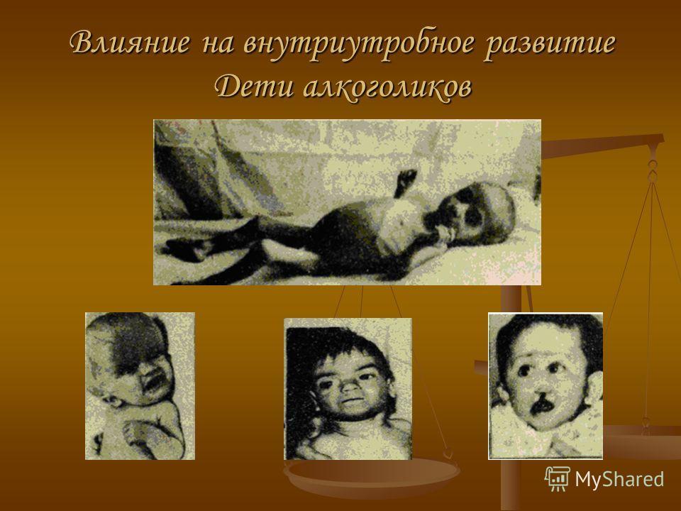 Влияние на внутриутробное развитие Дети алкоголиков