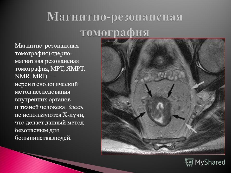 Магнитно-резонансная томография (ядерно- магнитная резонансная томография, МРТ, ЯМРТ, NMR, MRI) нерентгенологический метод исследования внутренних органов и тканей человека. Здесь не используются Х-лучи, что делает данный метод безопасным для большин