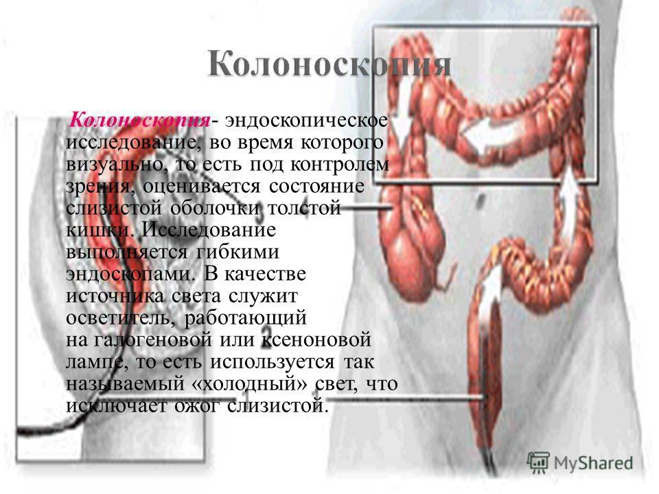 Колоноскопия- эндоскопическое исследование, во время которого визуально, то есть под контролем зрения, оценивается состояние слизистой оболочки толстой кишки. Исследование выполняется гибкими эндоскопами. В качестве источника света служит осветитель,