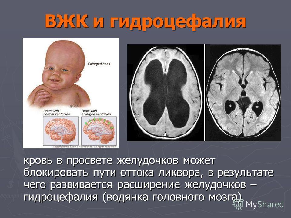 выполненные задания внутричерепное кровоизлияние новорожденных лечение какое сочетание цветов
