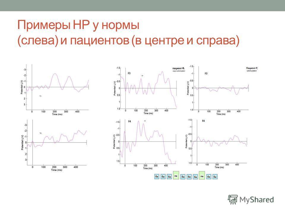 Примеры НР у нормы (слева) и пациентов (в центре и справа)
