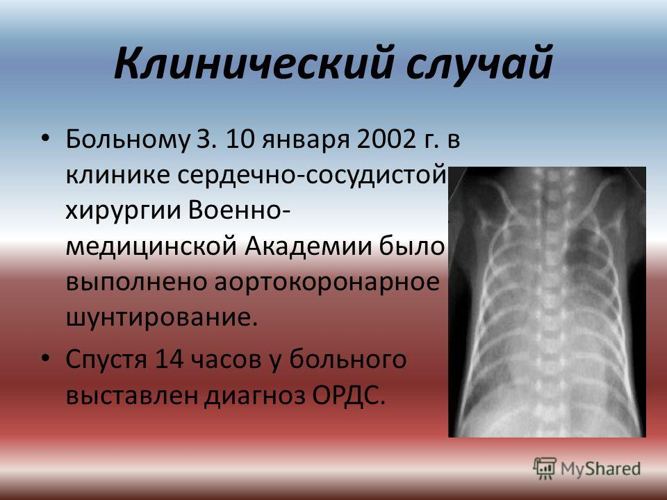Клинический случай Больному З. 10 января 2002 г. в клинике сердечно-сосудистой хирургии Военно- медицинской Академии было выполнено аортокоронарное шунтирование. Спустя 14 часов у больного выставлен диагноз ОРДС.