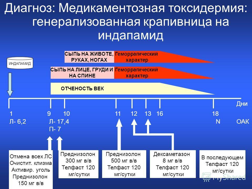 СЫПЬ НА ЛИЦЕ, ГРУДИ И НА СПИНЕ Геморрагический характер СЫПЬ НА ЖИВОТЕ, РУКАХ, НОГАХ Геморрагический характер ОТЧЕНОСТЬ ВЕК ИНДАПАМИД Дни 191011161618 Отмена всех ЛС Очистит. клизма Активир. уголь Преднизолон 150 мг в/в ОАКЛ- 6,2Л- 17,4 П- 7 N Предни