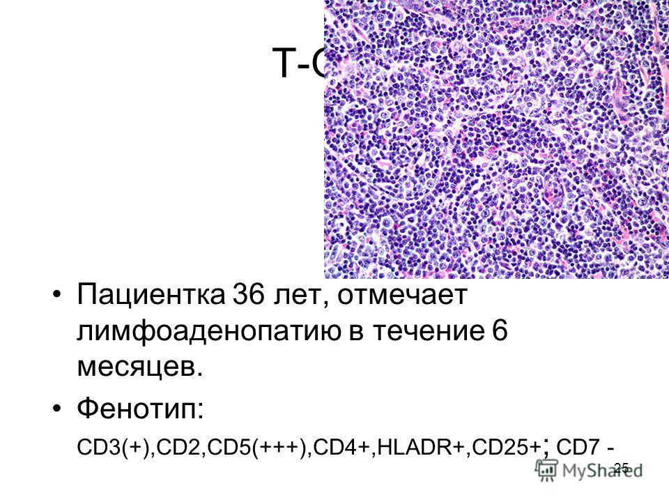 25 Т-ОЛЛ Пациентка 36 лет, отмечает лимфоаденопатию в течение 6 месяцев. Фенотип: CD3(+),CD2,CD5(+++),CD4+,HLADR+,CD25+ ; CD7 -