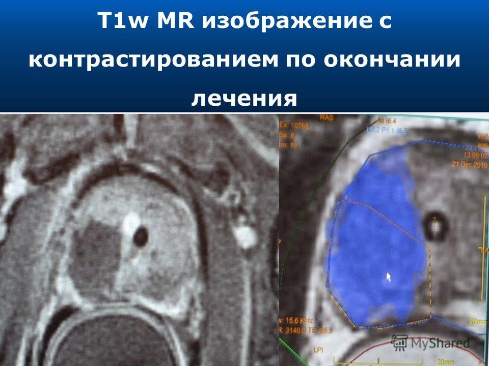 T1w MR изображение с контрастированием по окончании лечения