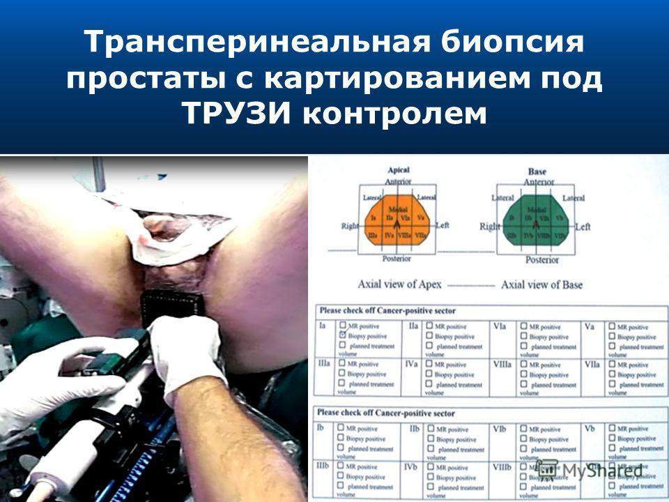Трансперинеальная биопсия простаты с картированием под ТРУЗИ контролем