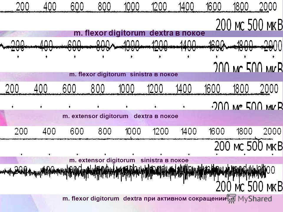 m. flexor digitorum dextra в покое m. flexor digitorum sinistra в покое m. extensor digitorum dextra в покое m. extensor digitorum sinistra в покое m. flexor digitorum dextra при активном сокращении