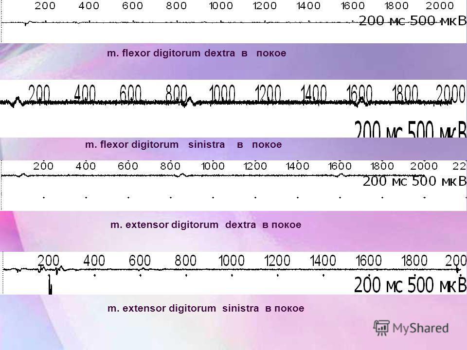 m. flexor digitorum dextra в покое m. flexor digitorum sinistra в покое m. extensor digitorum dextra в покое m. extensor digitorum sinistra в покое