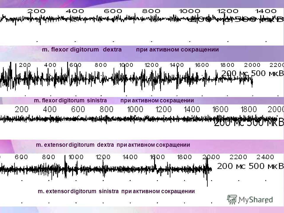 m. flexor digitorum dextra при активном сокращении m. flexor digitorum sinistra при активном сокращении m. extensor digitorum dextra при активном сокращении m. extensor digitorum sinistra при активном сокращении