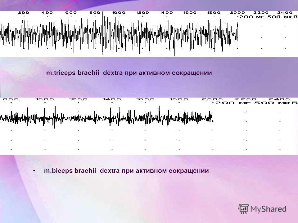 m.biceps brachii dextra при активном сокращении m.triceps brachii dextra при активном сокращении