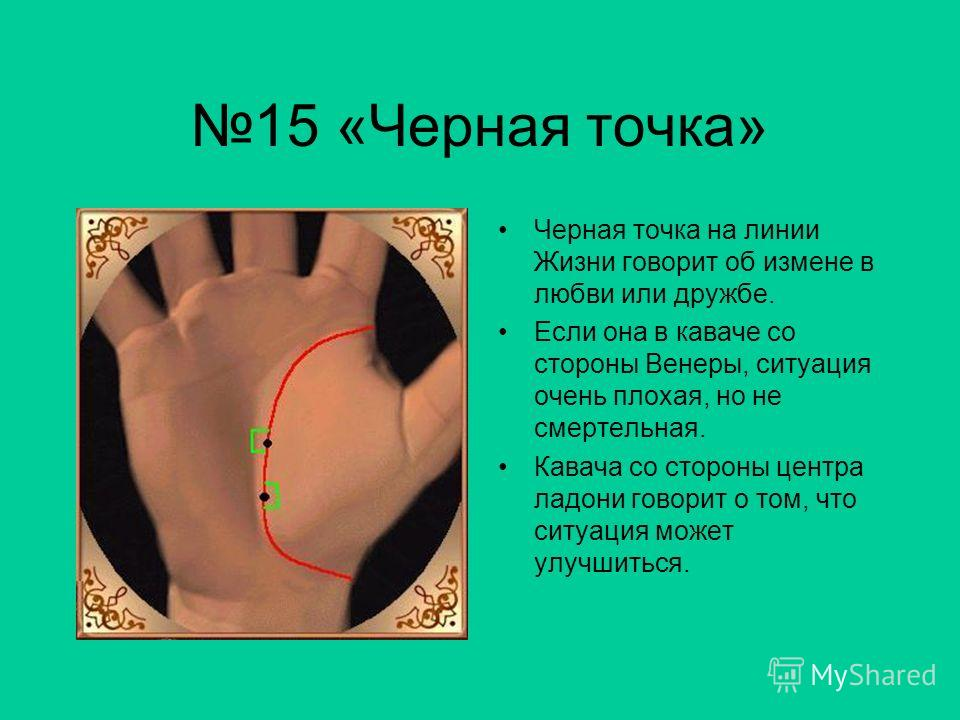 14 «Пересечения» Пересечения линии Жизни приносят в этом возрасте страдания, болезни и проблемы.