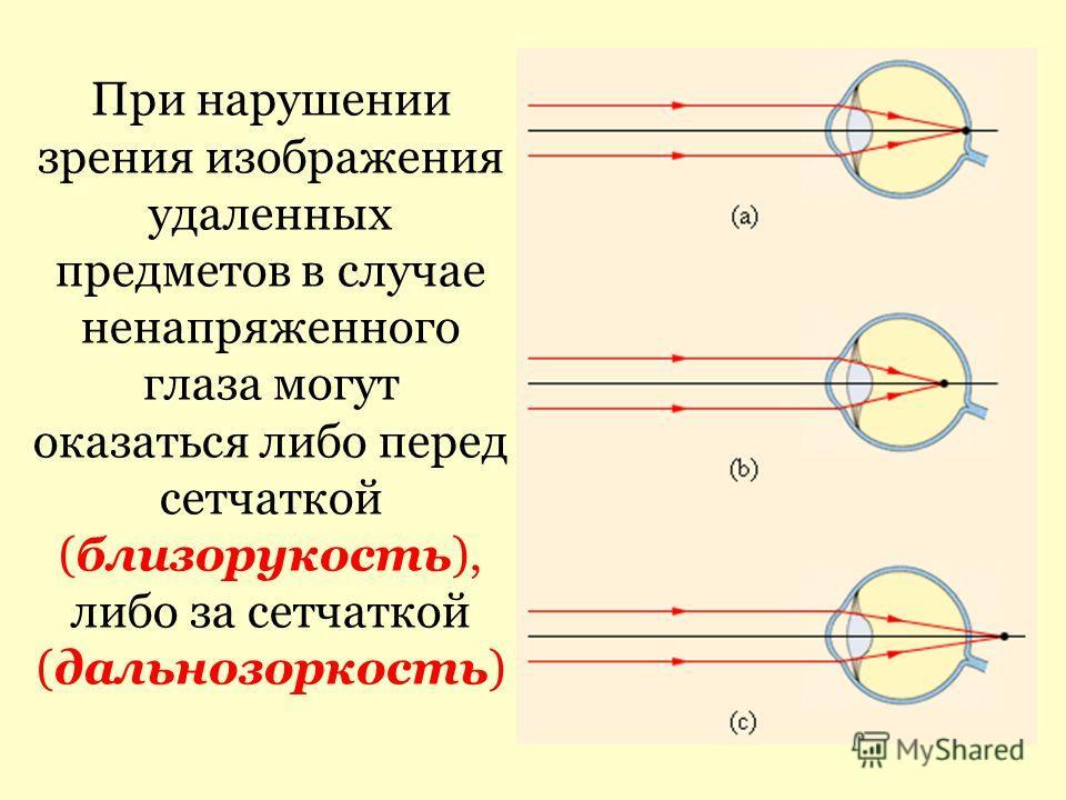 При нарушении зрения изображения удаленных предметов в случае ненапряженного глаза могут оказаться либо перед сетчаткой (близорукость), либо за сетчаткой (дальнозоркость)