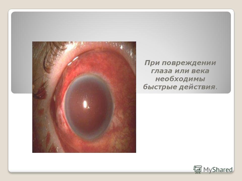 При повреждении глаза или века