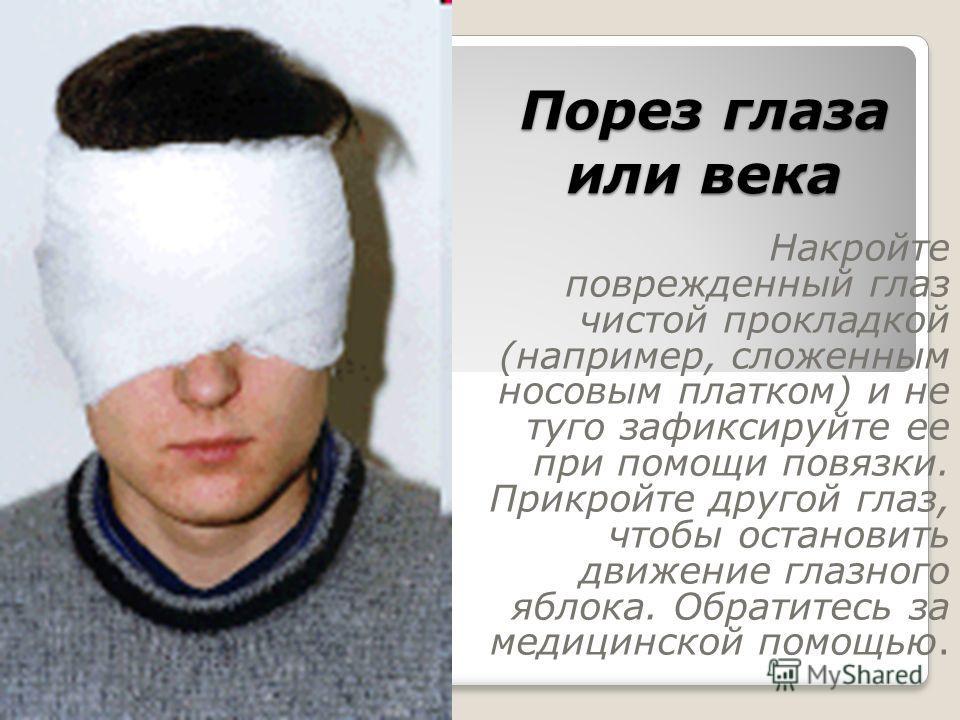 Порез глаза или века Накройте поврежденный глаз чистой прокладкой (например, сложенным носовым платком) и не туго зафиксируйте ее при помощи повязки. Прикройте другой глаз, чтобы остановить движение глазного яблока. Обратитесь за медицинской помощью.