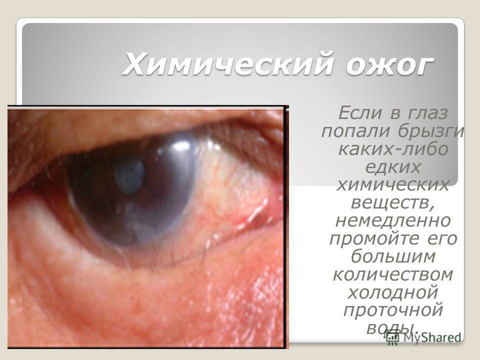 Химический ожог Если в глаз попали брызги каких-либо едких химических веществ, немедленно промойте его большим количеством холодной проточной воды.