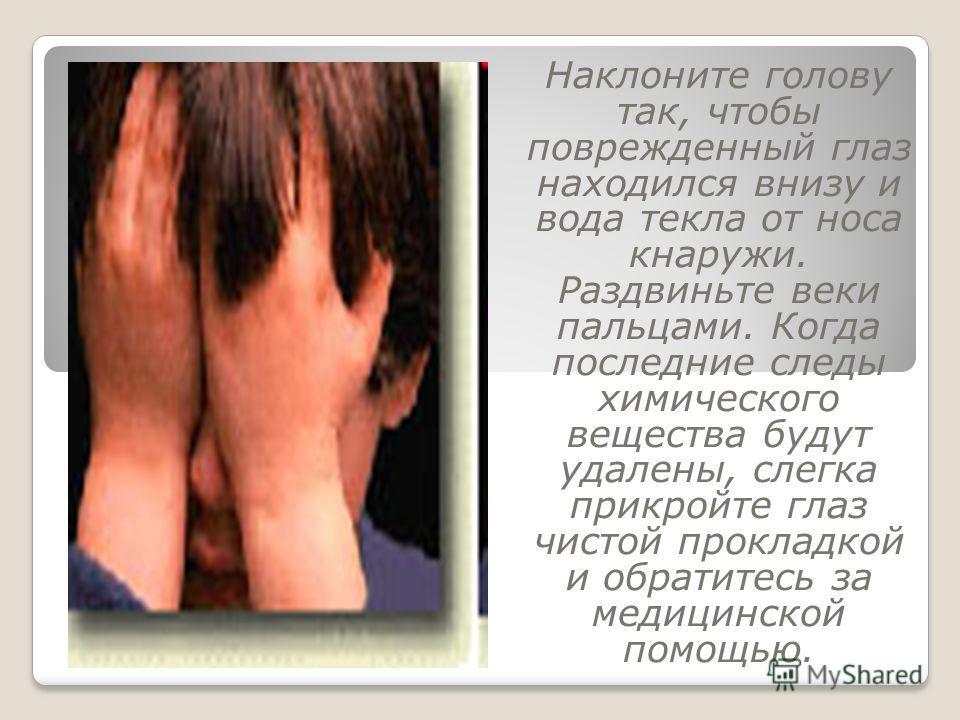 Наклоните голову так, чтобы поврежденный глаз находился внизу и вода текла от носа кнаружи. Раздвиньте веки пальцами. Когда последние следы химического вещества будут удалены, слегка прикройте глаз чистой прокладкой и обратитесь за медицинской помощь