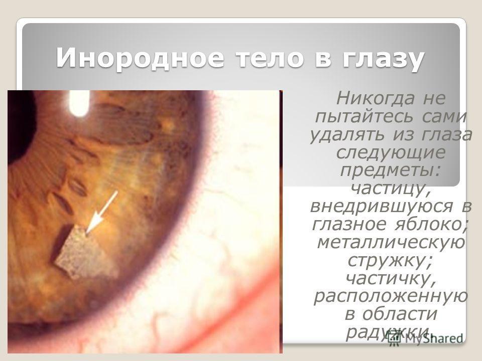 Инородное тело в глазу Никогда не пытайтесь сами удалять из глаза следующие предметы: частицу, внедрившуюся в глазное яблоко; металлическую стружку; частичку, расположенную в области радужки.
