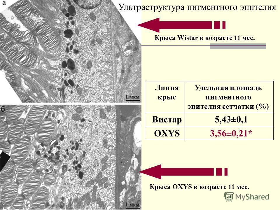 Ультраструктура пигментного эпителия Крыса Wistar в возрасте 11 мес. Крыса OXYS в возрасте 11 мес. 3,56±0,21*OXYS 5,43±0,1Вистар Удельная площадь пигментного эпителия сетчатки (%) Линия крыс