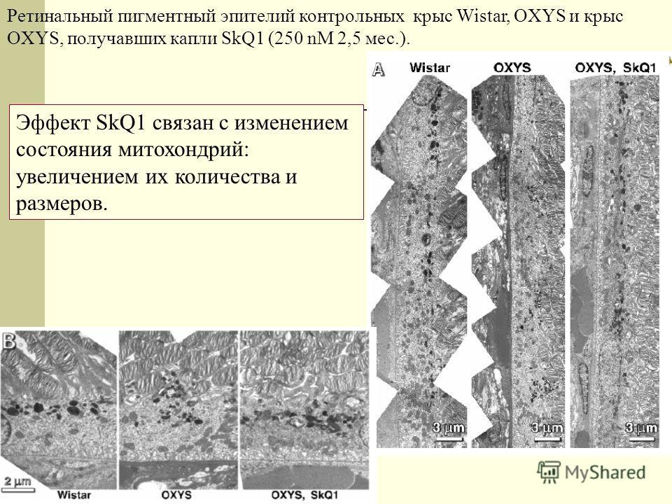 Ретинальный пигментный эпителий контрольных крыс Wistar, OXYS и крыс OXYS, получавших капли SkQ1 (250 nM 2,5 мес.). Эффект SkQ1 связан с изменением состояния митохондрий: увеличением их количества и размеров.
