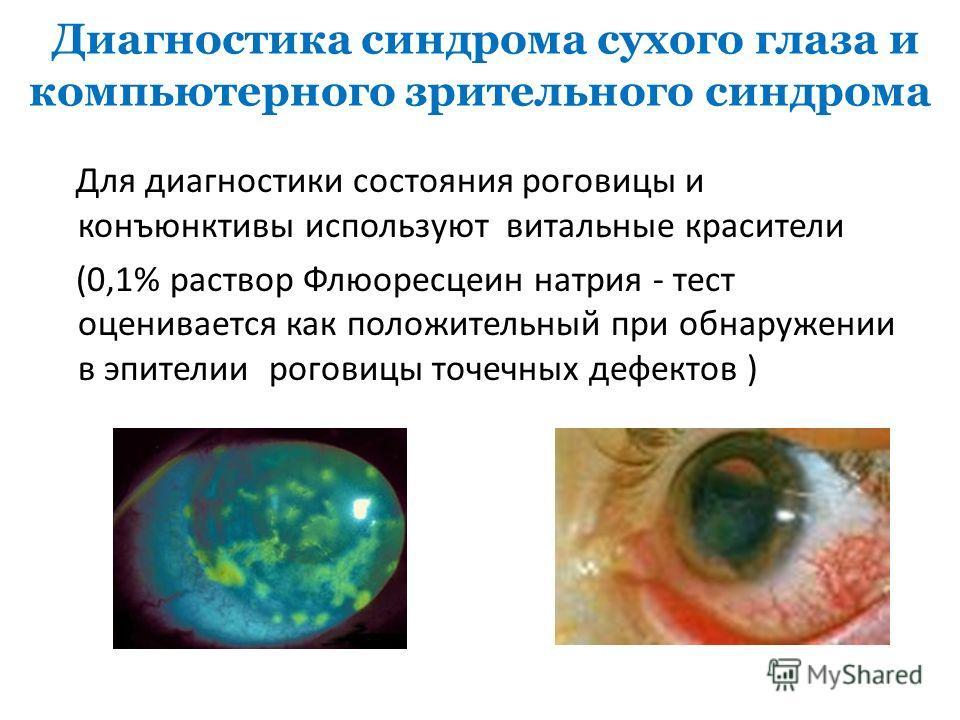 Диагностика синдрома сухого глаза и компьютерного зрительного синдрома Для диагностики состояния роговицы и конъюнктивы используют витальные красители (0,1% раствор Флюоресцеин натрия - тест оценивается как положительный при обнаружении в эпителии ро