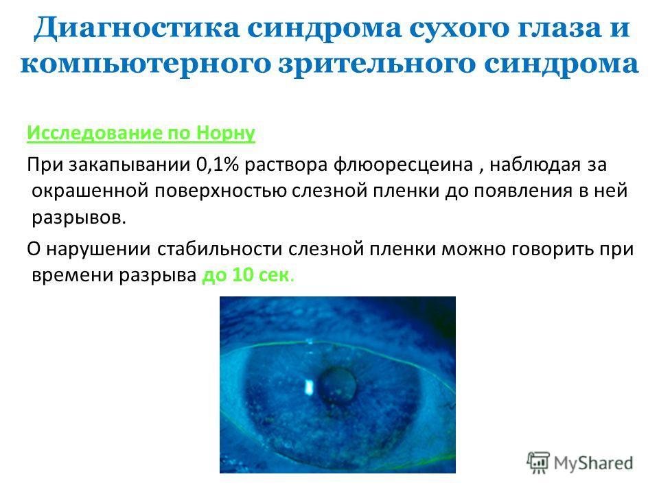 Диагностика синдрома сухого глаза и компьютерного зрительного синдрома Исследование по Норну При закапывании 0,1% раствора флюоресцеина, наблюдая за окрашенной поверхностью слезной пленки до появления в ней разрывов. О нарушении стабильности слезной