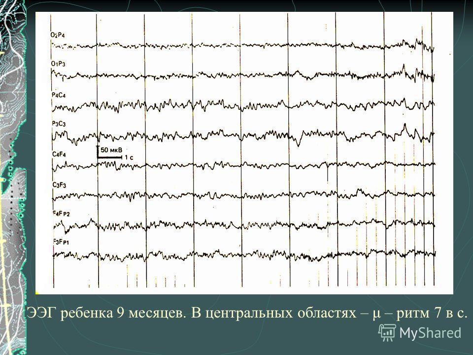 ЭЭГ ребенка 9 месяцев. В центральных областях – μ – ритм 7 в с.