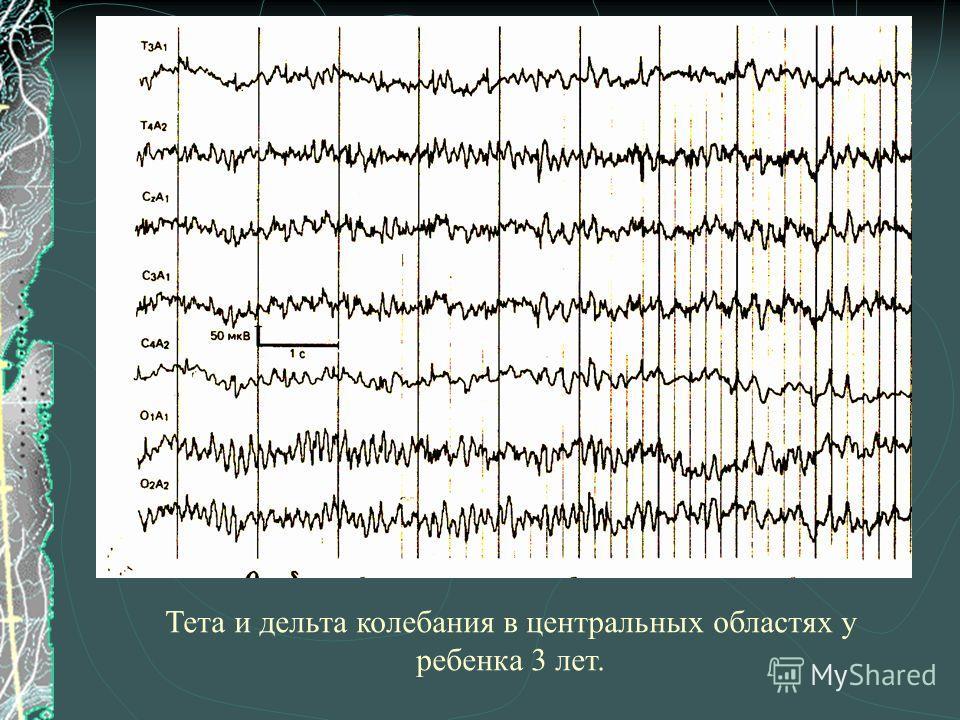 Тета и дельта колебания в центральных областях у ребенка 3 лет.