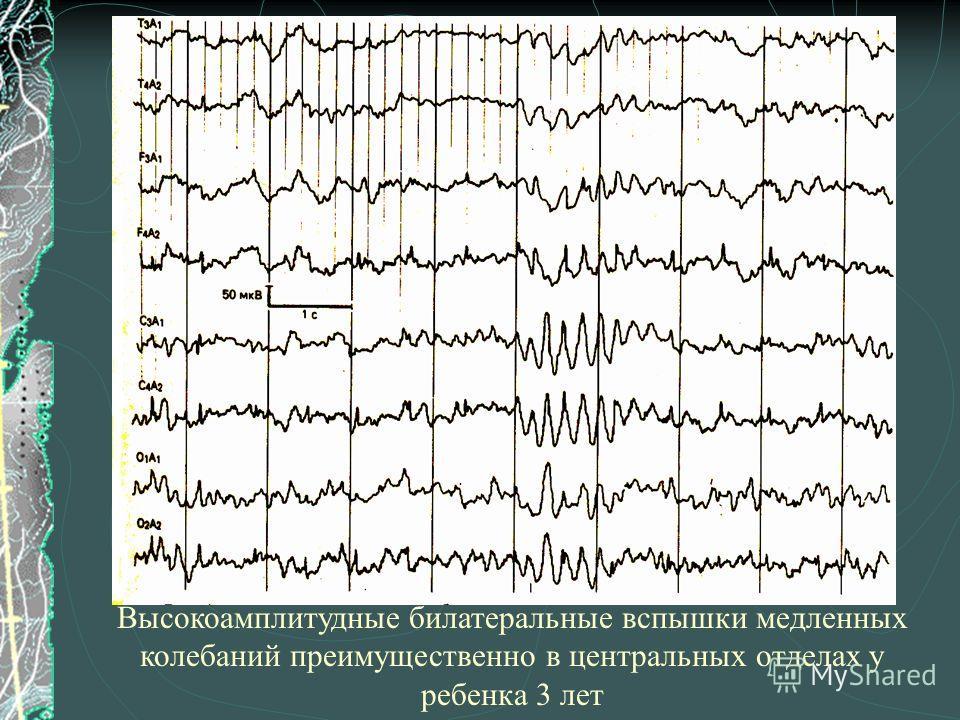 Высокоамплитудные билатеральные вспышки медленных колебаний преимущественно в центральных отделах у ребенка 3 лет