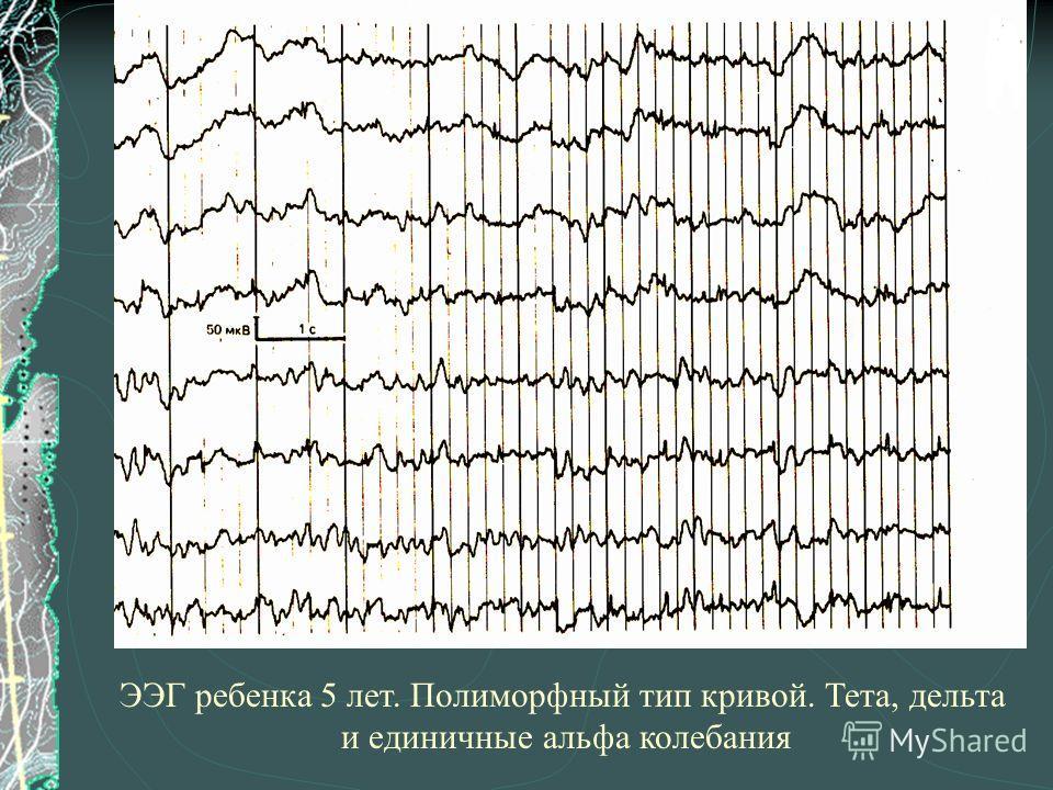 ЭЭГ ребенка 5 лет. Полиморфный тип кривой. Тета, дельта и единичные альфа колебания