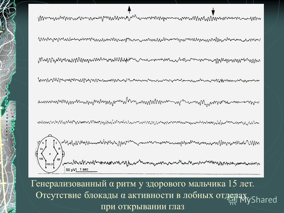 Генерализованный α ритм у здорового мальчика 15 лет. Отсутствие блокады α активности в лобных отделах. при открывании глаз
