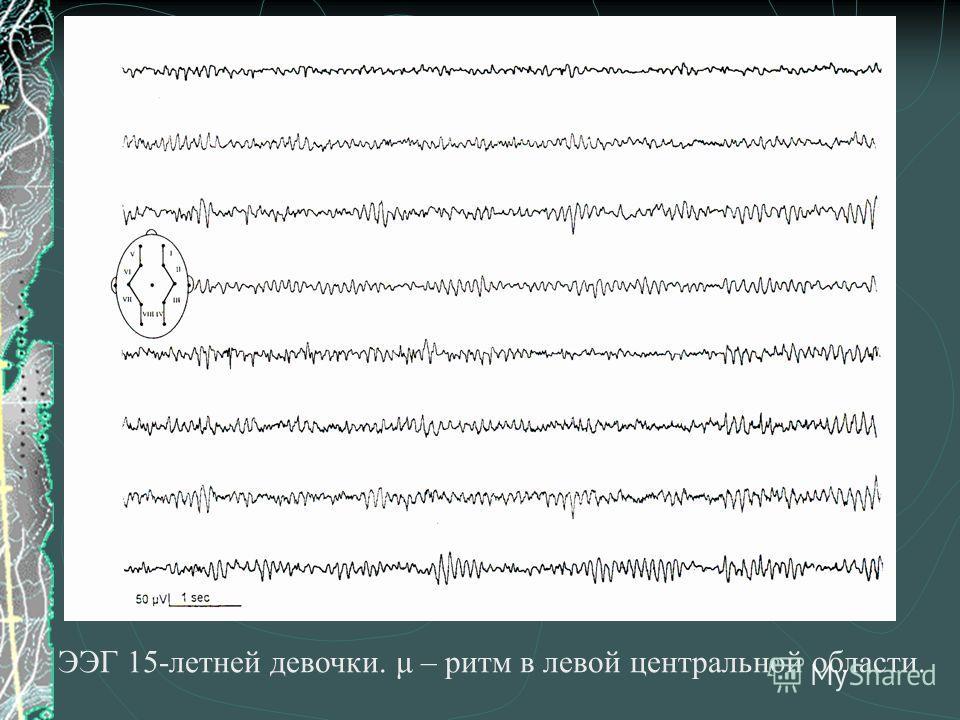 ЭЭГ 15-летней девочки. μ – ритм в левой центральной области.