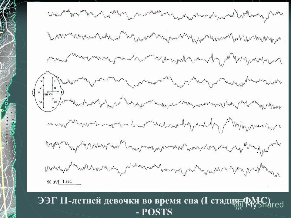 ЭЭГ 11-летней девочки во время сна (I стадия ФМС) - POSTS