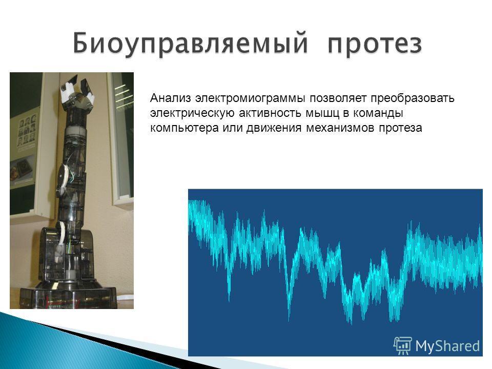 Анализ электромиограммы позволяет преобразовать электрическую активность мышц в команды компьютера или движения механизмов протеза