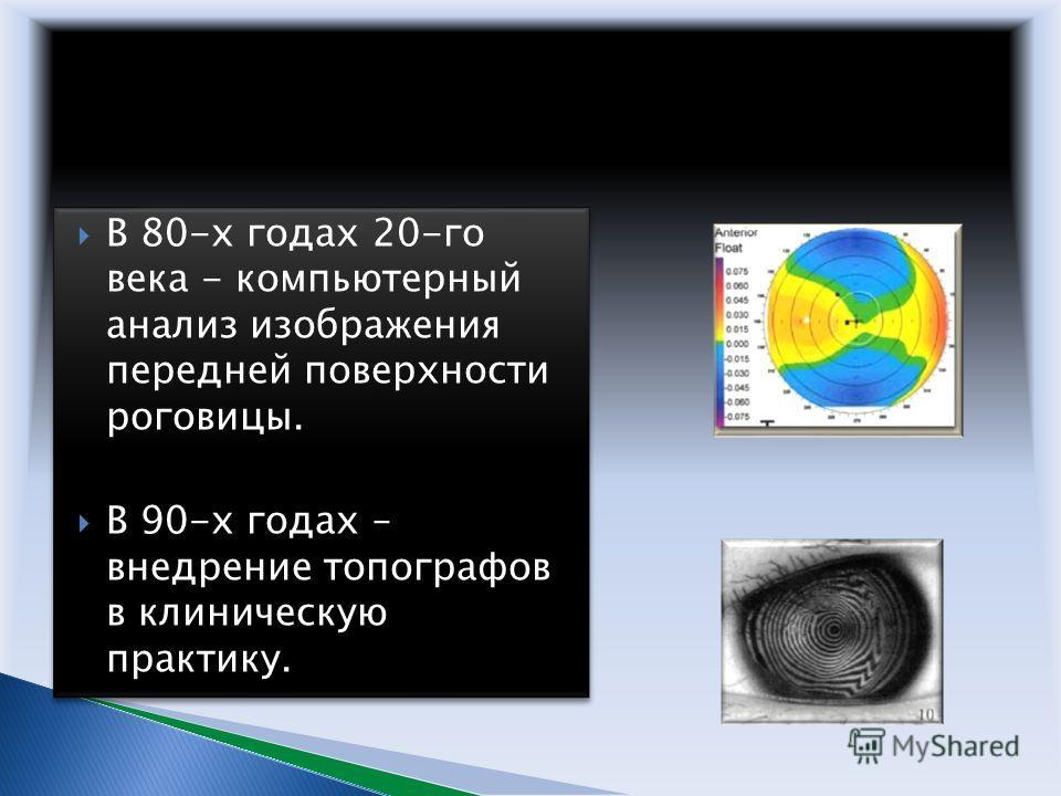В 80-х годах 20-го века - компьютерный анализ изображения передней поверхности роговицы. В 90-х годах – внедрение топографов в клиническую практику. В 80-х годах 20-го века - компьютерный анализ изображения передней поверхности роговицы. В 90-х годах