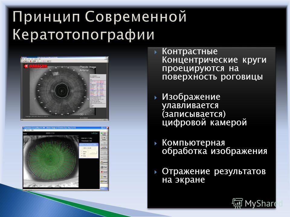 Контрастные Концентрические круги проецируются на поверхность роговицы Изображение улавливается (записывается) цифровой камерой Компьютерная обработка изображения Отражение результатов на экране Контрастные Концентрические круги проецируются на повер