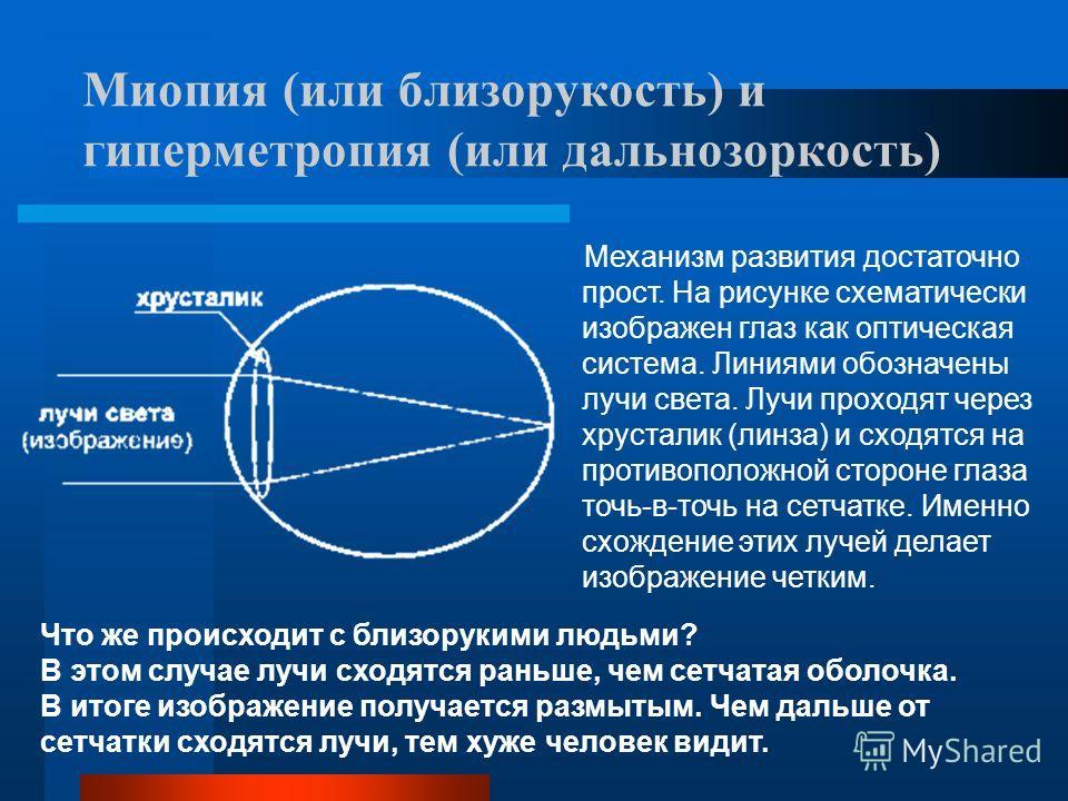Миопия (или близорукость) и гиперметропия (или дальнозоркость) Механизм развития достаточно прост. На рисунке схематически изображен глаз как оптическая система. Линиями обозначены лучи света. Лучи проходят через хрусталик (линза) и сходятся на проти