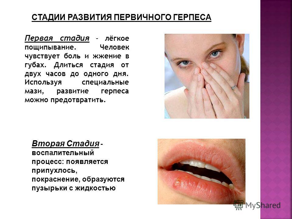 Первая стадия – лёгкое пощипывание. Человек чувствует боль и жжение в губах. Длиться стадия от двух часов до одного дня. Используя специальные мази, развитие герпеса можно предотвратить. Вторая Стадия - воспалительный процесс: появляется припухлось,
