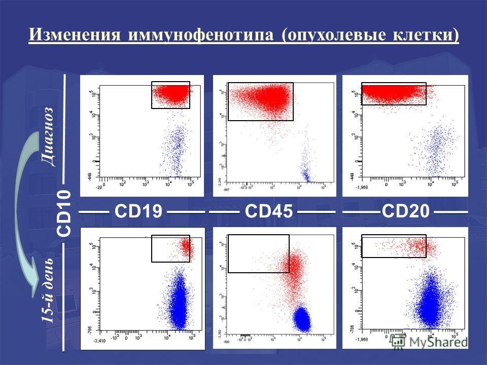 CD10 CD45 CD20 15-й день Диагноз CD19 Изменения иммунофенотипа (опухолевые клетки)