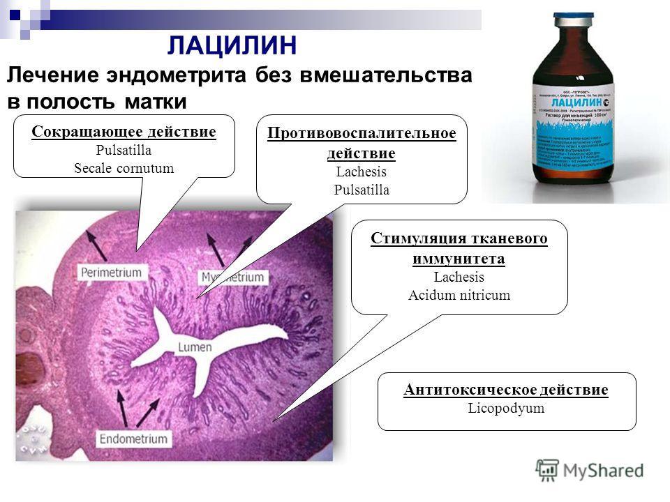 Сокращающее действие Pulsatilla Secale cornutum Противовоспалительное действие Lachesis Pulsatilla Стимуляция тканевого иммунитета Lachesis Acidum nitricum Антитоксическое действие Licopodyum ЛАЦИЛИН Лечение эндометрита без вмешательства в полость ма