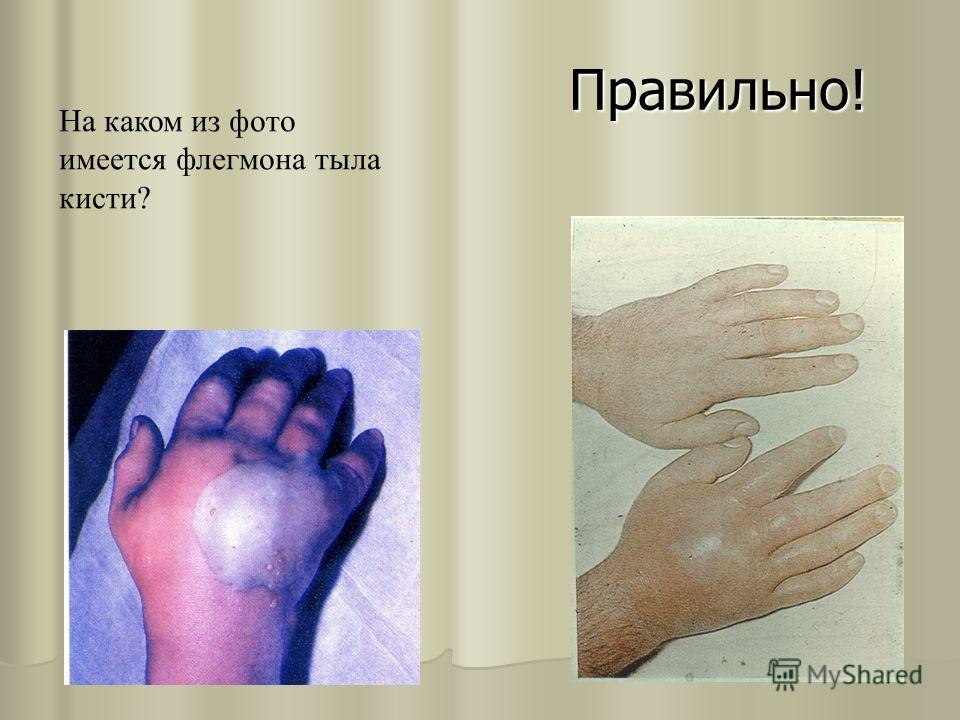 Правильно! На каком из фото имеется флегмона тыла кисти?