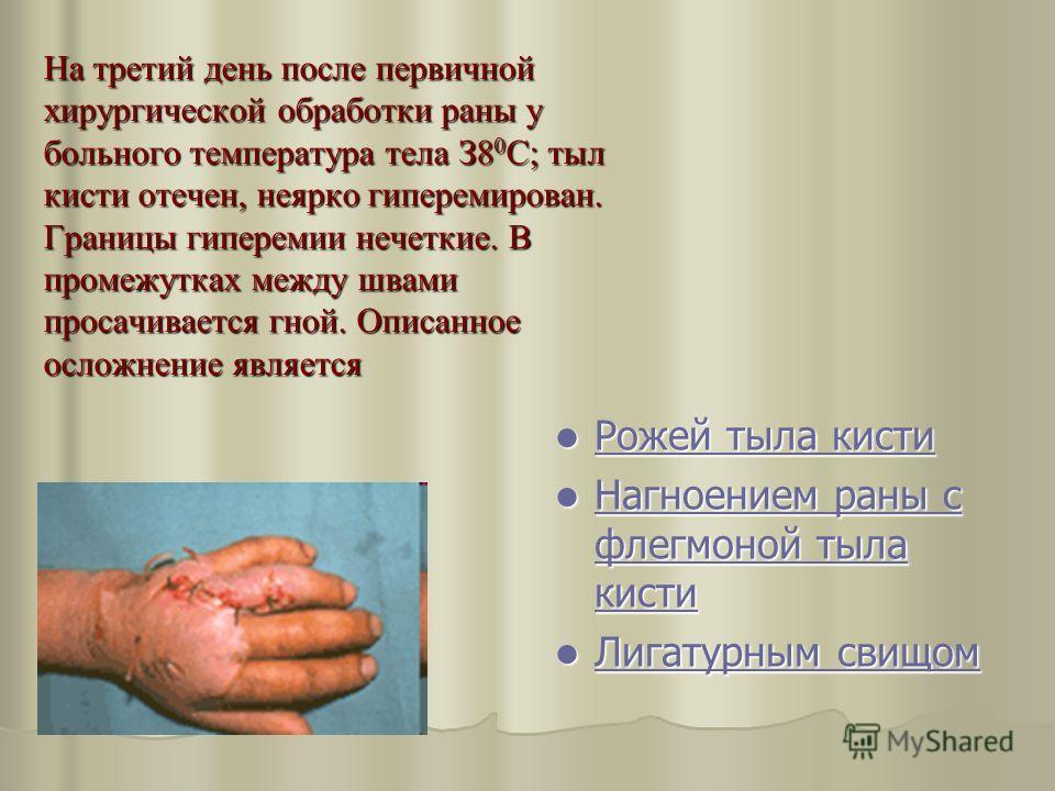 На третий день после первичной хирургической обработки раны у больного температура тела З8 0 С; тыл кисти отечен, неярко гиперемирован. Границы гиперемии нечеткие. В промежутках между швами просачивается гной. Описанное осложнение является Рожей тыла