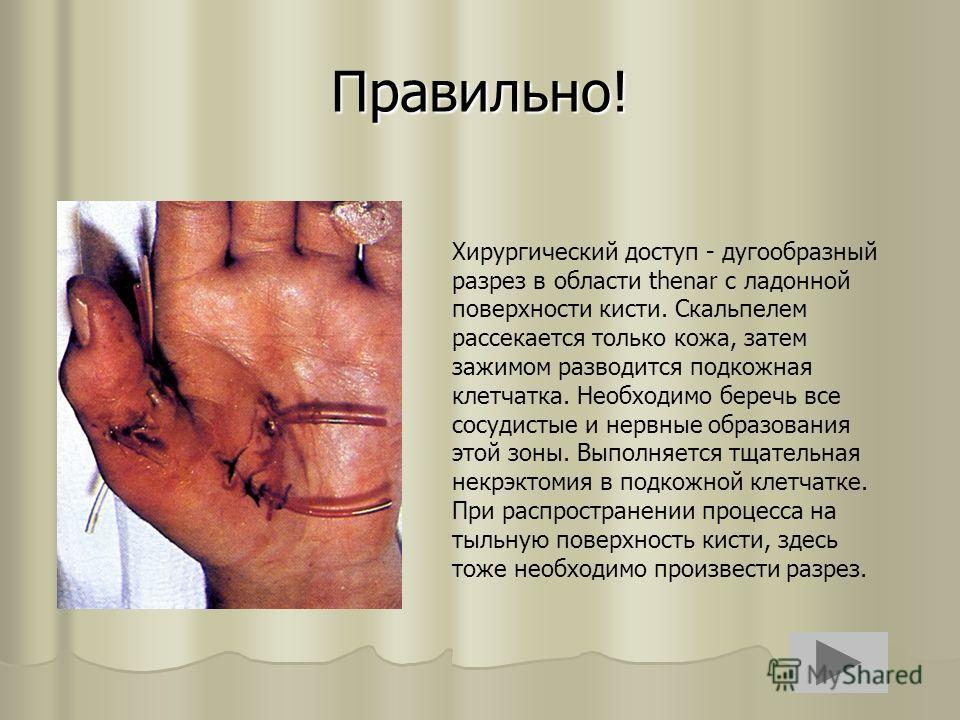 Правильно! Хирургический доступ - дугообразный разрез в области thenar с ладонной поверхности кисти. Скальпелем рассекается только кожа, затем зажимом разводится подкожная клетчатка. Необходимо беречь все сосудистые и нервные образования этой зоны. В