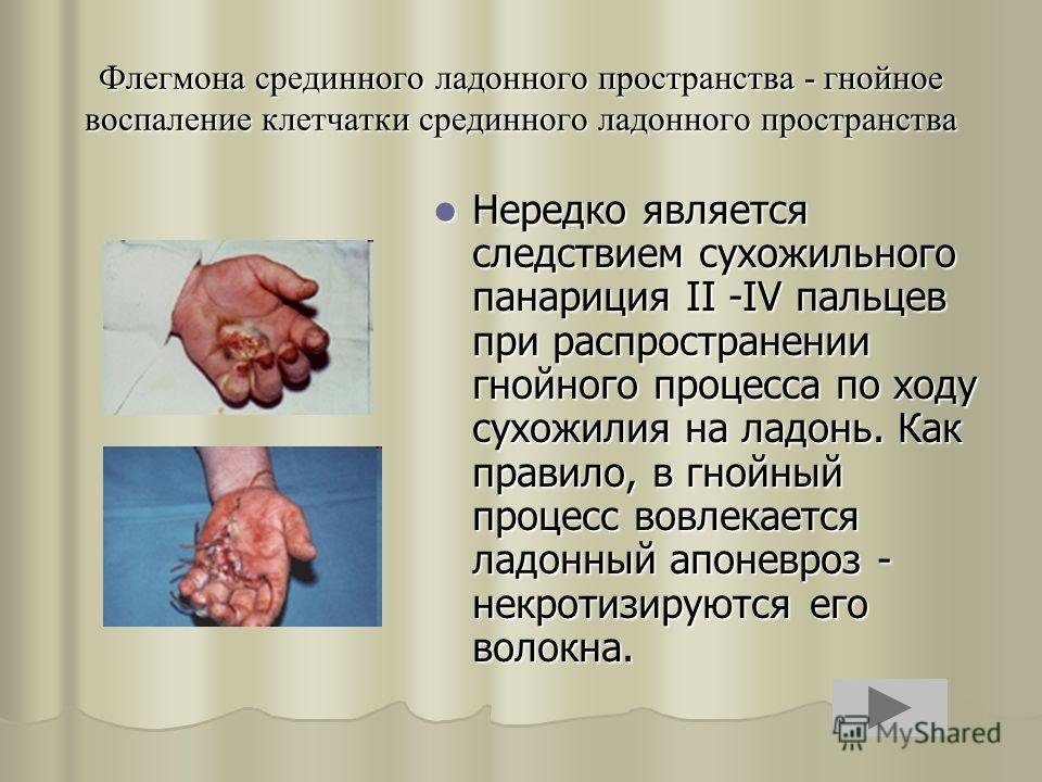 Флегмона срединного ладонного пространства - гнойное воспаление клетчатки срединного ладонного пространства Нередко является следствием сухожильного панариция II -IV пальцев при распространении гнойного процесса по ходу сухожилия на ладонь. Как прави