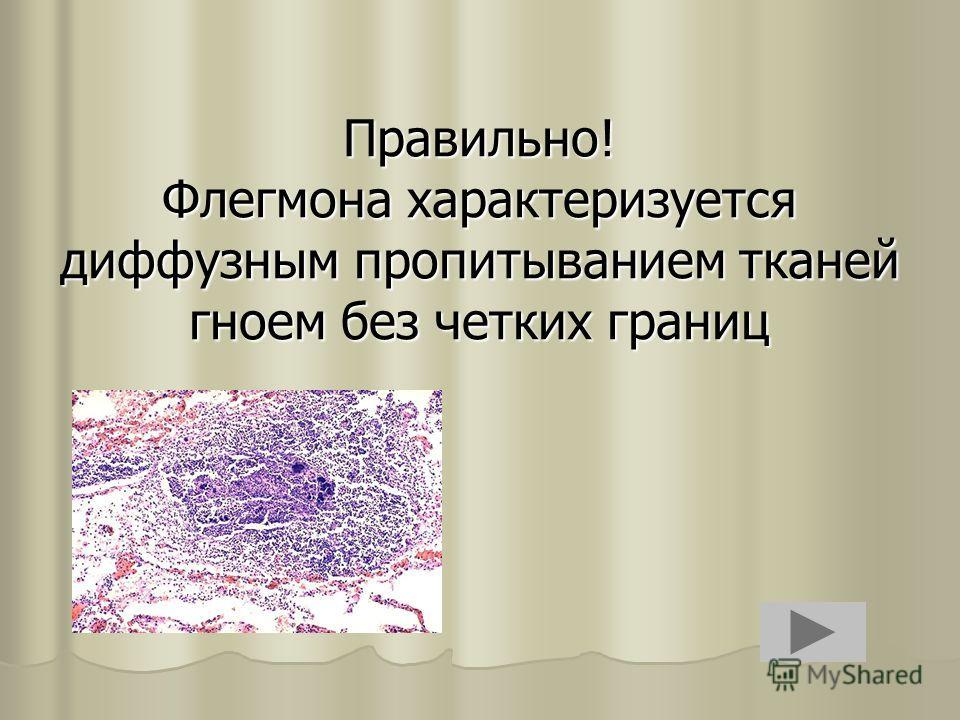 Правильно! Флегмона характеризуется диффузным пропитыванием тканей гноем без четких границ