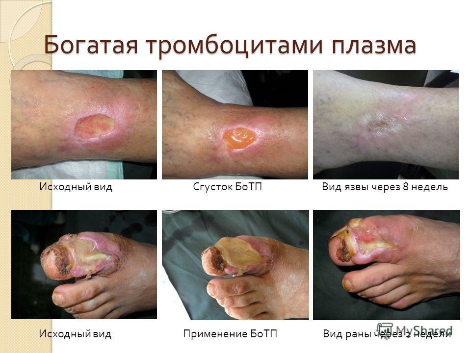 Богатая тромбоцитами плазма Исходный вид Сгусток БоТП Вид язвы через 8 недель Исходный вид Применение БоТП Вид раны через 2 недели