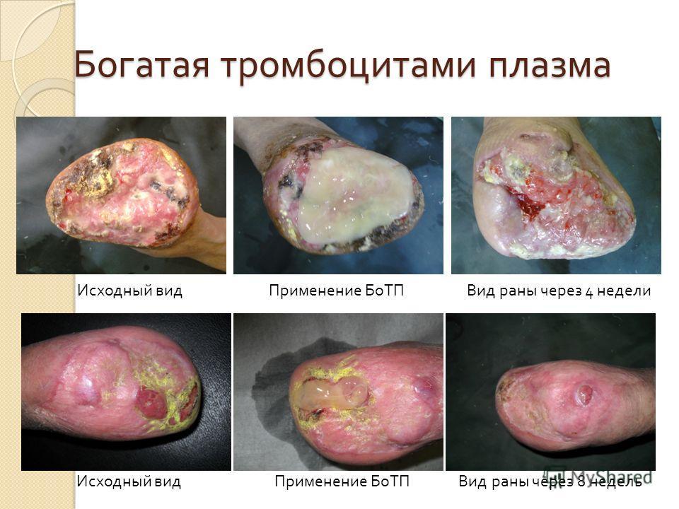 Богатая тромбоцитами плазма Исходный вид Применение БоТП Вид раны через 4 недели Исходный вид Применение БоТП Вид раны через 8 недель