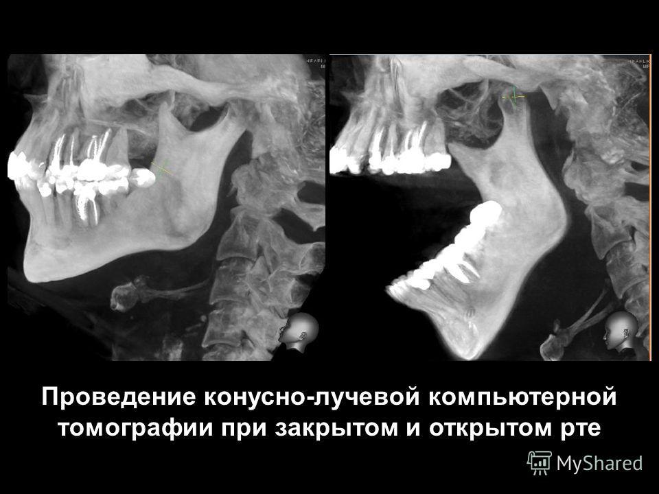 Проведение конусно-лучевой компьютерной томографии при закрытом и открытом рте